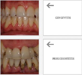 tratamientos periodoncia coruña
