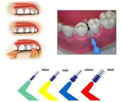 mantenimiento dental coruña